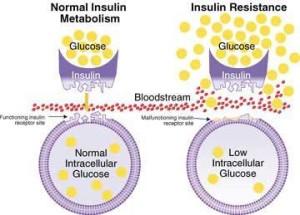 Insulinresistance