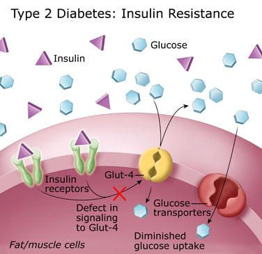 insulin2