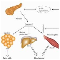 insulin3
